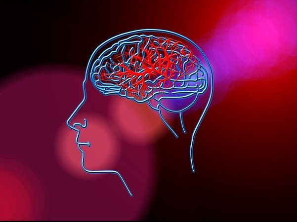 Longitudinal study finds link between whole blood microRNAs and stroke