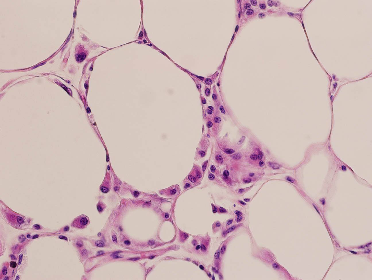 fat cells (obese_fat_cell.jpg.jpg)