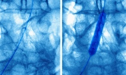 Heart attack patients in states with public reporting less likely to receive angioplasty