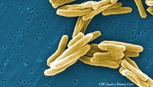 Scientists uncover evidence on how drug-resistant tuberculosis cells form
