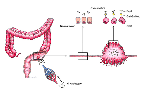 Fusobacteria use a special sugar-binding protein to bind to colon tumors