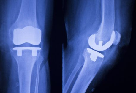 Medicare's bundled payment experiment for joint replacements shows moderate savings