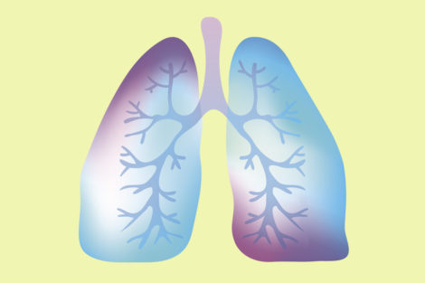 Non-allergic asthma linked with increased risk of severe COVID-19