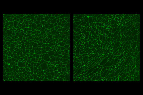 Newly discovered mechanism for cellular migration has implications for embryonic development, cancer metastasis, and tissue regeneration