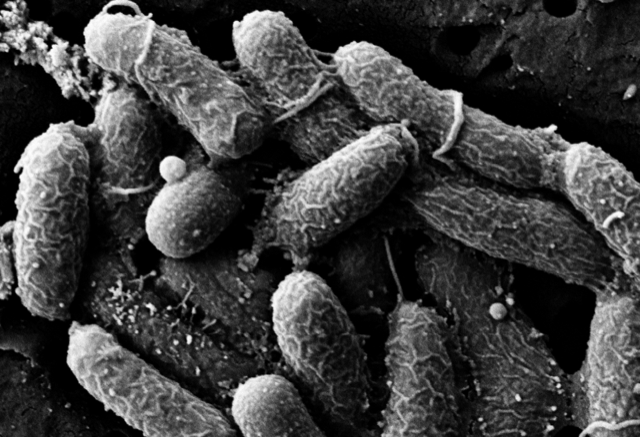 Vibrio cholerae, the bacterium that causes cholera, as seen under an electron microscope after being exposed to an antibody that Giffen was studying in 2017.