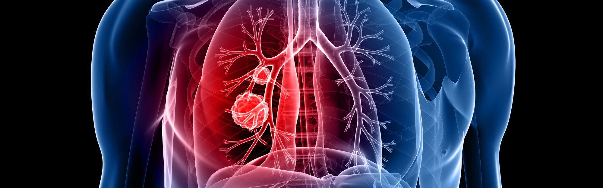 Boston Lung Cancer Study