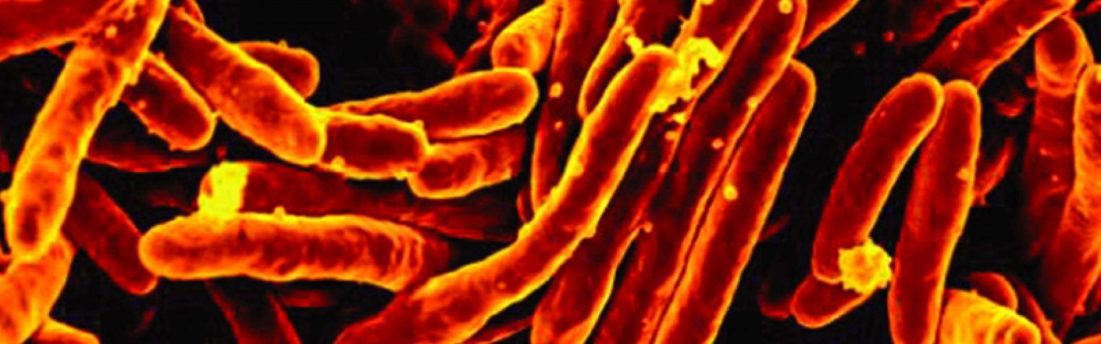 How TB is Breaking the Rules of Biology
