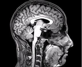 brain fmri scan - photo #34